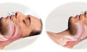 Как избавитсья от храпа во сне мужчине в домашних условиях: виды лечения